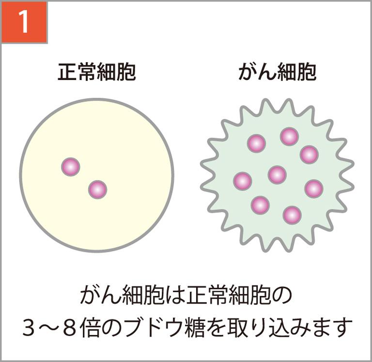 がん細胞は正常細胞の3~8倍ブドウ糖を取り込みます