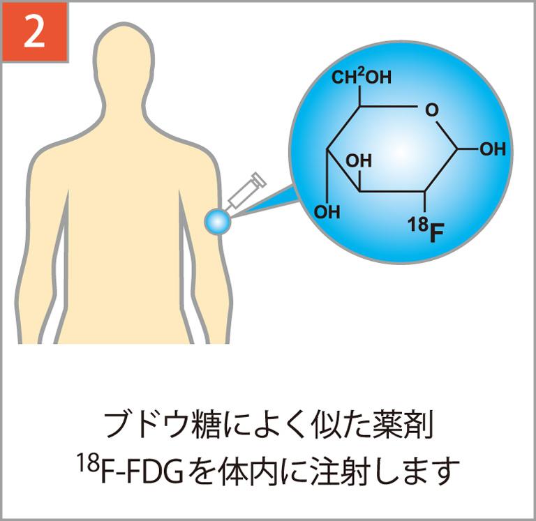 ブドウ糖によく似た薬剤18F-FDGを注射します