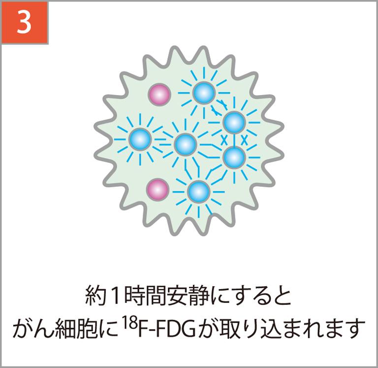 約1時間安静にするとがん細胞に18F-FDGが集まります