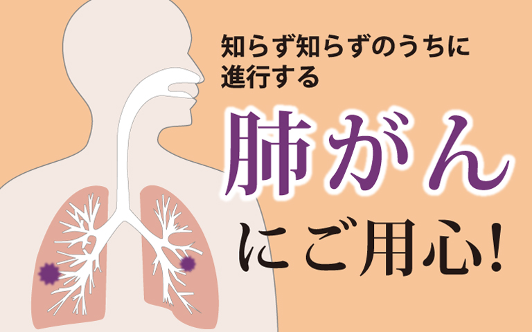 肺がんにご用心